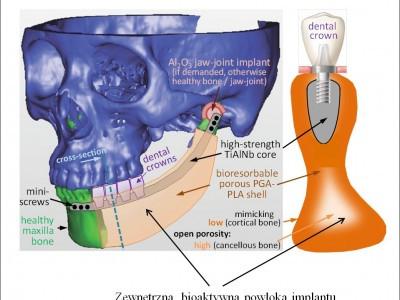 Bioaktywny materiał hydrożelowy do regeneracji tkanki kostnej